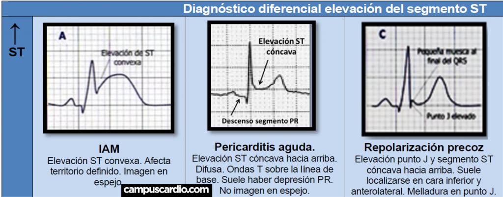 Diagnóstico diferencial elevación del Segmento ST