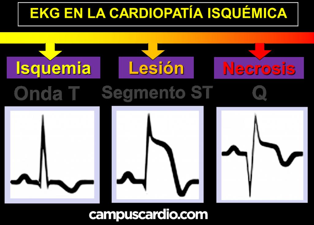 EKG en cardiopatia isquemica