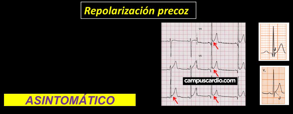 Patrón de Repolarización Precoz
