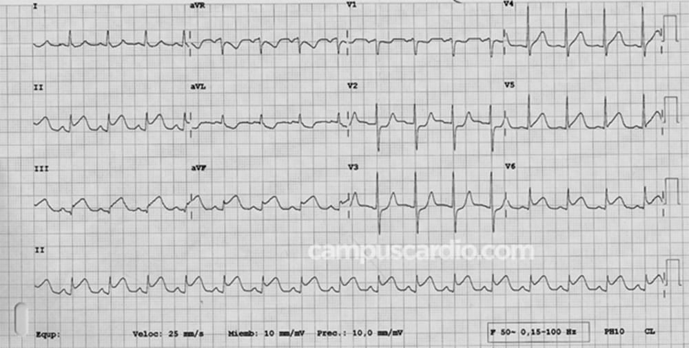 Electrocardiograma de Paciente de 82 años con fibrilación auricular