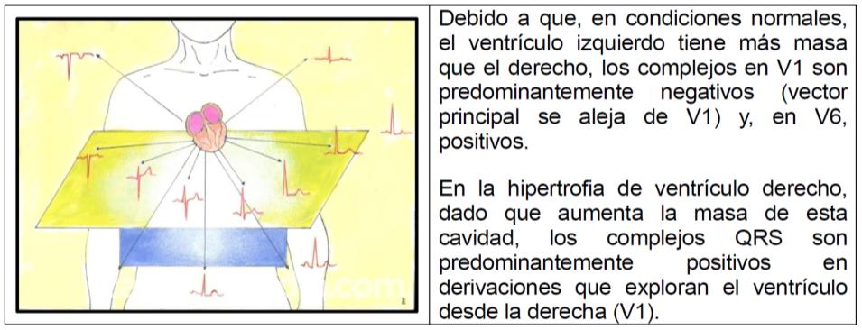 HDV hipertrofia ventricular derecha