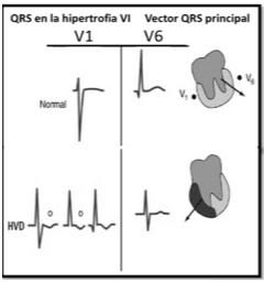 Desviación del eje del QRS