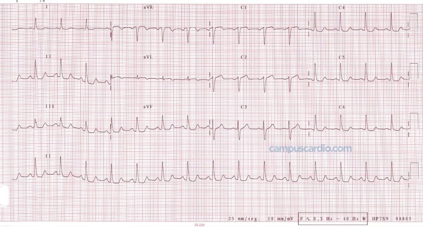 Electrocardiograma Wellens tras cateterismo
