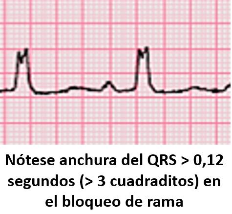 anchura-del-QRS-en-el-BRIHH