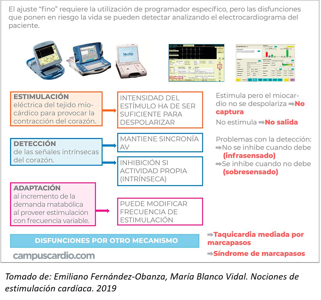DISFUNCIONES-DEL-MARCAPASOS-CUADRO
