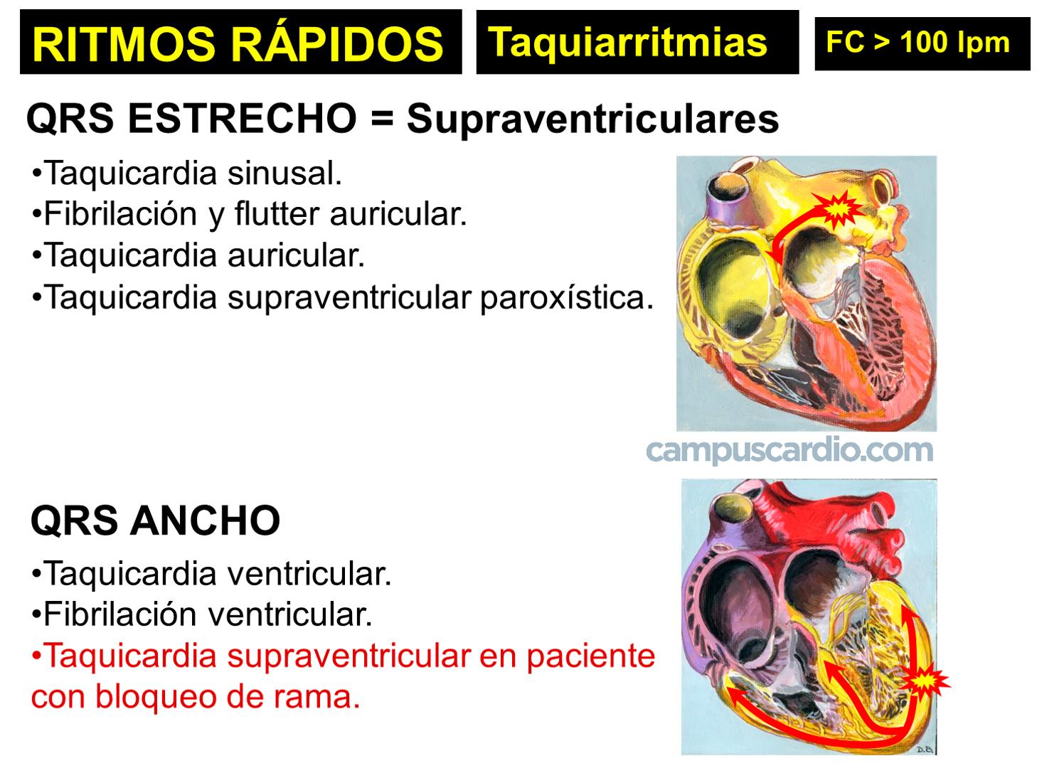 RITMOS-RÁPIDOS-taquiarritmias