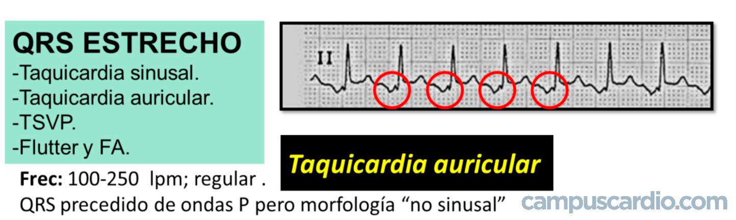 TAQUIcardia-AURICULAR