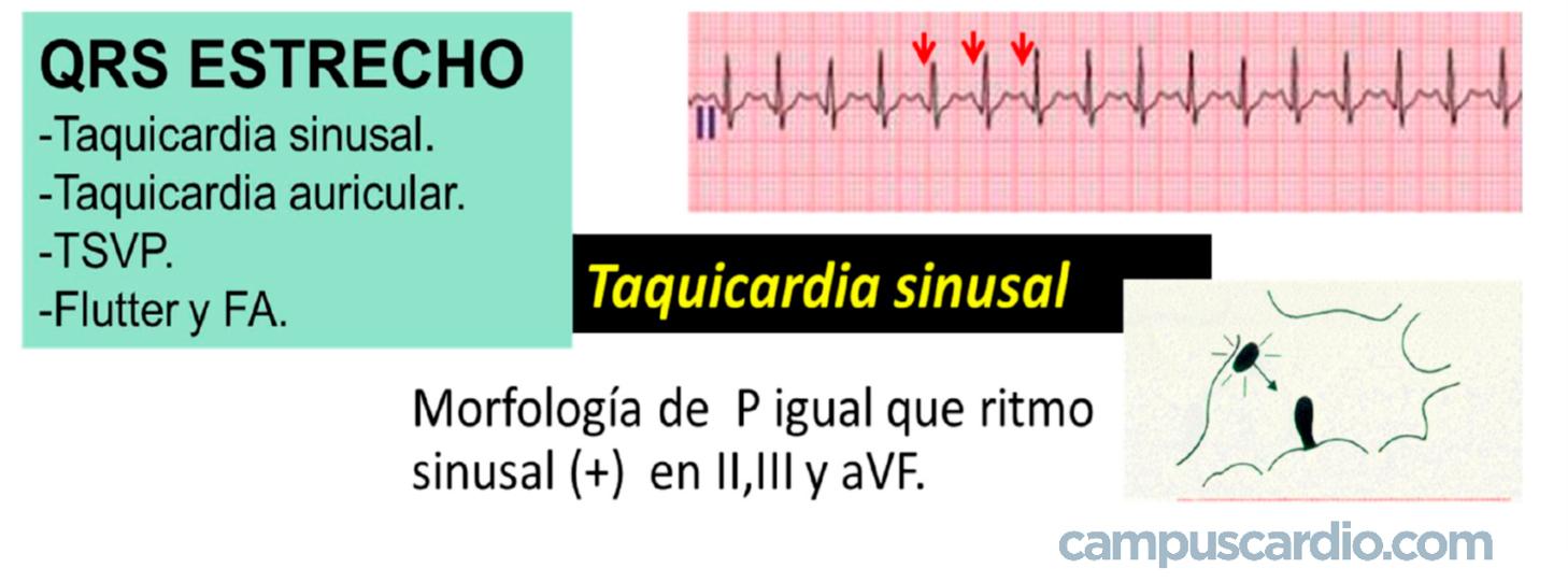 TAQUIcardia-SINUSAL