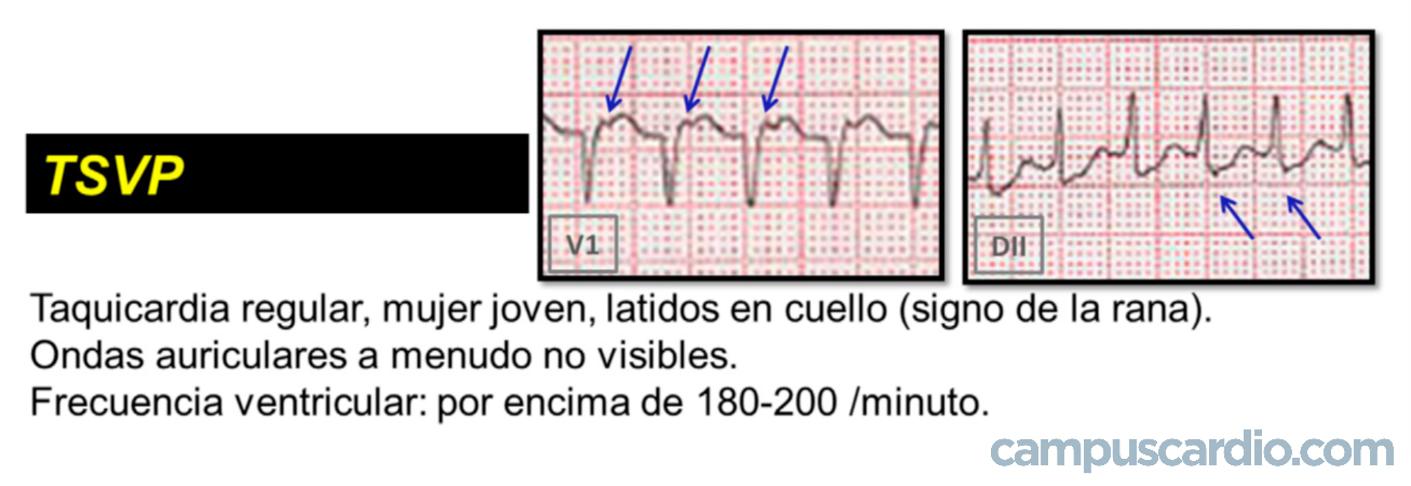 taquicardia regular