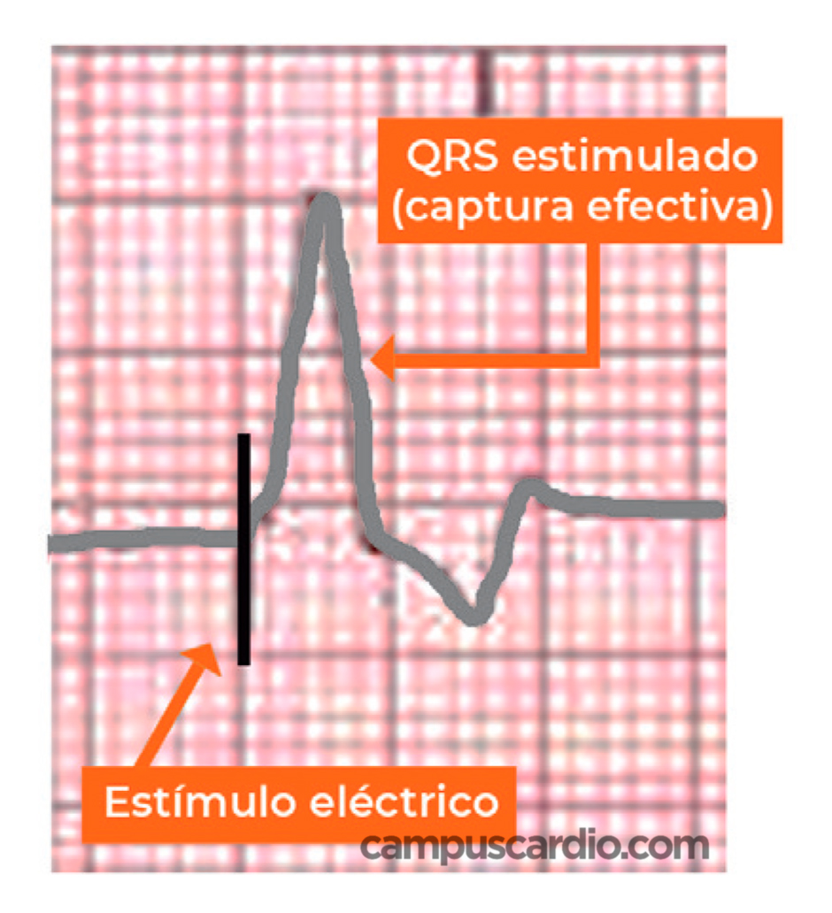 captura-qrs-estimulado