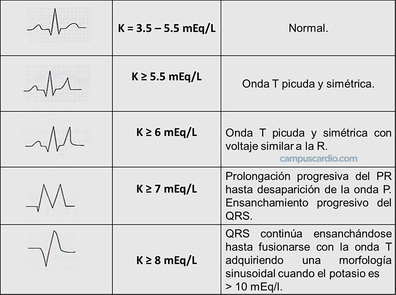 alteraciones-ekg-en-la-hiperpotasemia-campuscardio