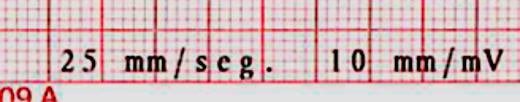 ¿Cómo medimos las pausas? Para medir las pausas tenemos que recordar un que el trazado electrocardiográfico debe realizarse de forma estandarizada. Un elemento importante de esta estandarización es que la velocidad a la que sale el papel de registro es 25 mm/seg.
